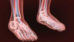 Hormonal Imbalances, a Cause of Peripheral Neuropathy 1