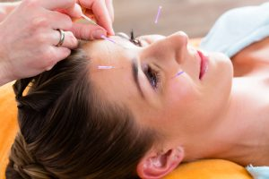 Relieving Menopausal Migraine With Acupuncture 1