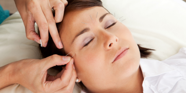 Relieving Menopausal Migraine With Acupuncture
